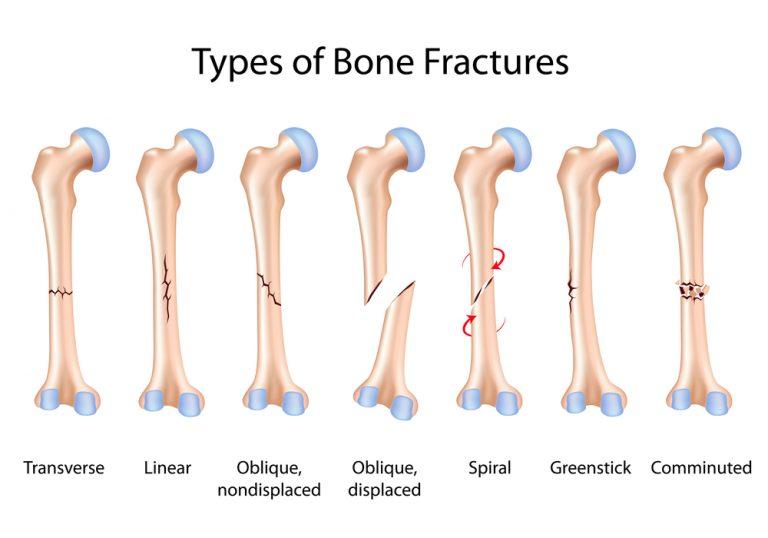 Виды переломов кости