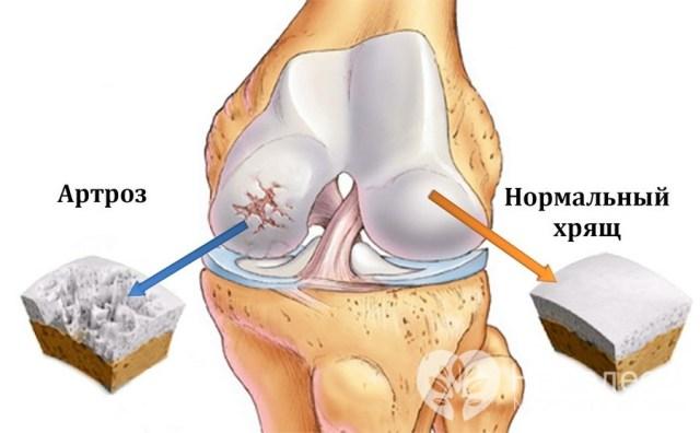 Методы эффективного лечения артроза коленного сустава