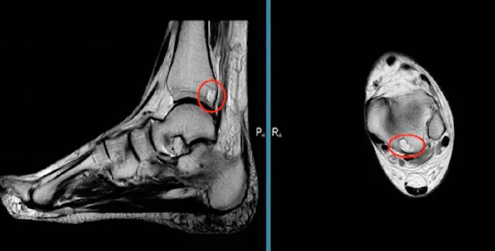 Зачем делают МРТ голеностопного сустава?