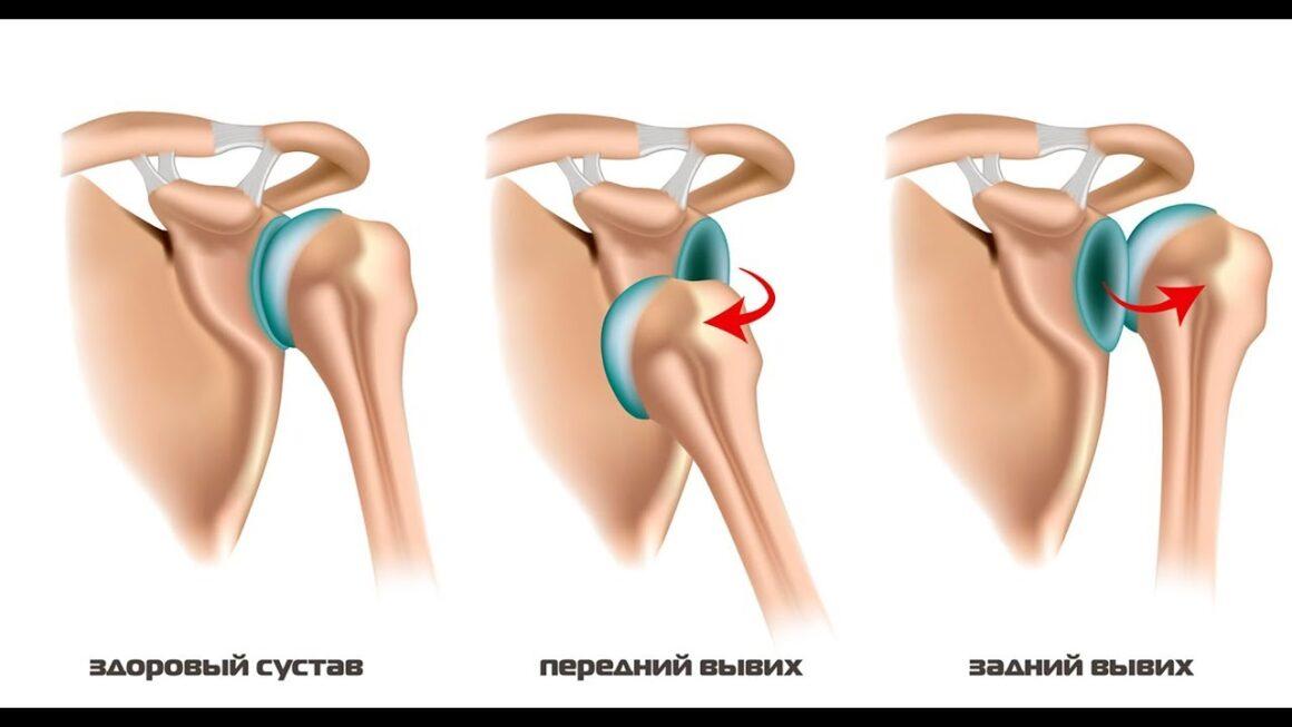 Операция при привычном вывихе плеча: что нужно знать пациенту?