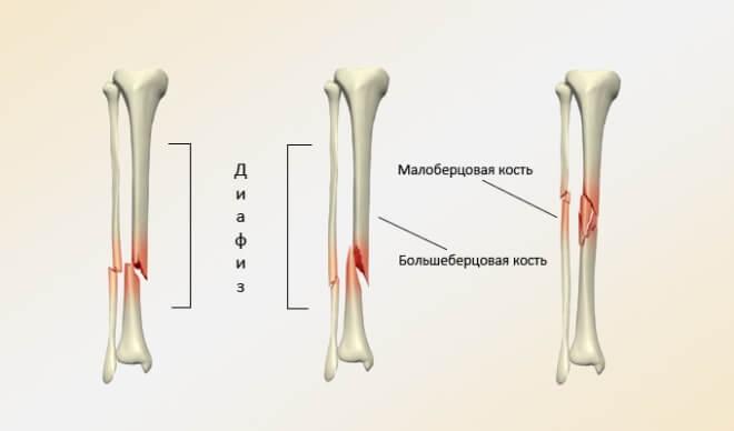 Как проходит лечение открытых перелом голени?